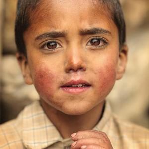 маленькие дети попрошайки в пакистане